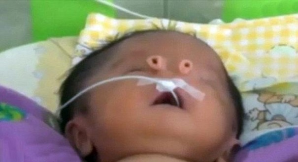 ولادة طفل في البيرو بأنبوبين بدلًا من الأنف