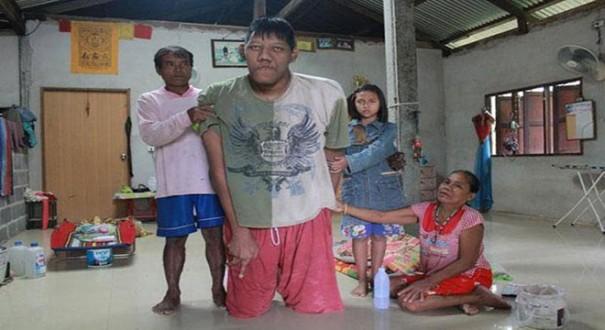 وفاة أطول رجل في العالم عن 26 عاما و269 سنتيمترا