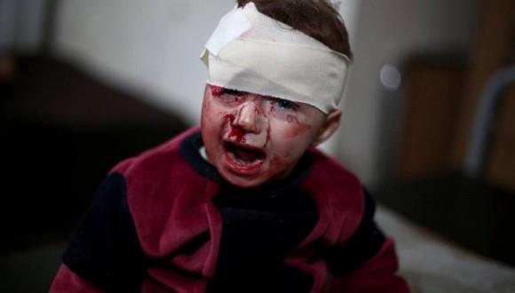 القذائف الصاروخية تستهدف المدنيين بشوارع حلب