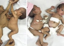CHANDIGARH, INDIA - NOVEMBER 23: Conjoined sisters Jannat and Mannat seen at the Post Graduate Institute of Medical Education and Research institution before the operation on November 23, 2015 in Chandigarh, India. A PAIR of three-month-old conjoined twins have been successfully separated by doctors in India. Surgeons at the Post Graduate Institute of Medical Education and Research (PGIMER) operated on sisters Jannat and Mannat on November 23, 2015. Born on August 27, 2015, at a private hospital in Barara, a town in Ambala district, near Chandigarh, the twins were rushed to PGIMER within a week of their birth. The duo were joined at their abdomen and lower chest ó a condition known medically as omphalophagus - and weighed only 6.6 lbs (3kg) combined. PHOTOGRAPH BY Barcroft India UK Office, London. T +44 845 370 2233 W www.barcroftmedia.com USA Office, New York City. T +1 212 796 2458 W www.barcroftusa.com Indian Office, Delhi. T +91 11 4053 2429 W www.barcroftindia.com