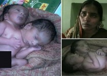 CATERS NEWS AGENCY / (Pictured - The new born two-headed baby) - Local residents in a north Indian town are awestruck after a woman gave birth to a two-headed baby at a medical care facility. Doctors at Saroj Nursing Home in Kanpur, Uttar Pradesh, confirmed that a woman had given birth to a conjoined twin with two heads and fused lower body. 30-year-old Anita Kumar who gave birth to the twin on Saturday said she was devastated to have given birth to an alien like baby. The news came as a shock but we were still devastated. They were just a result of bad fate. We can only curse our stars  Anitas husband Satish Kumar said. - SEE CATERS COPY