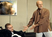 Mandatory Credit: Photo by ZUMA/REX/Shutterstock (4848048a)  Dr Sergio Canavero and Valery Spiridonov  Plans for the first human head transplant announced, Annapolis, America - 12 Jun 2015  Dr Sergio Canavero discusses his hopes to perform the world's first head transplant on Russian Valery Spiridonov in a presentation at a meeting of the American Academy of Neurological and Orthopaedic Surgeons in Annapolis