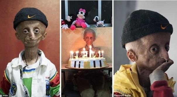 مراهق عمره 120 عاما بسبب اضطراب جيني نادر
