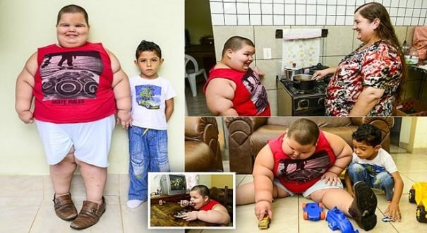 طفل بعمر الخامسة يزن 76 كيلوغراما بسبب مرض نادر
