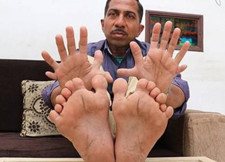 تعرفوا إلى صاحب أكبر عدد أصابع في العالم