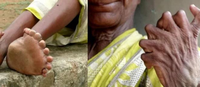سيدة مولودة بـ 12 إصبعًا في يديها و20 في قدميها يصفها الجيران بالساحرة